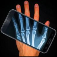 X射线身体扫描模拟器